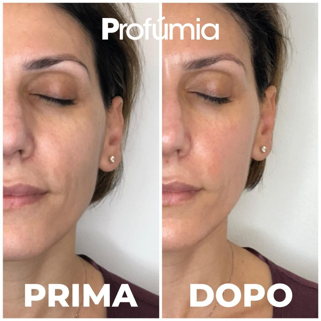 trattamento viso innovativo antiage Hydra Pure age